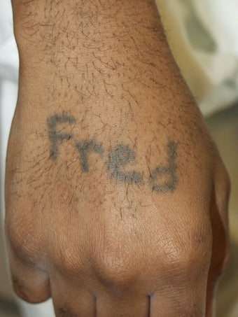 Tattoo Removal African American Skin before 139071