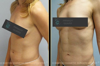Vaser Liposuction before 561796