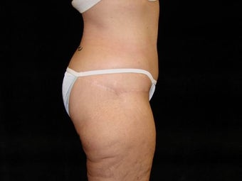 Body Lift with Liposuction of Abdomen, Waist, and Flanks after 203458
