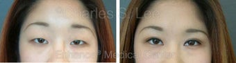 Blepharoplasty before 427720