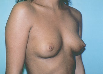 Breast Augmentation - Small B Cup to Small D Cup before 297502