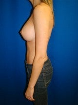 Breast Augmentation 359693