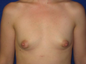 Breast Augmentation before 621781