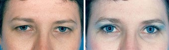 Blepharoplasty before 643242