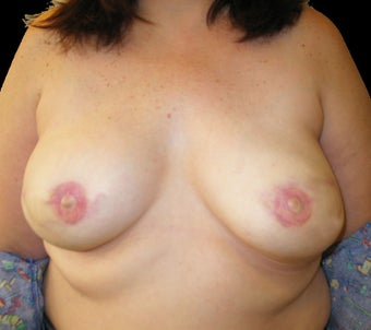 Bilateral breast reconstruction with abdominal flap after 476713