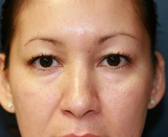 Upper and Lower Eyelid Blepharoplasty before 326448