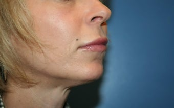 Lip Augmentation after 362762