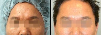 Endoscopic Brow Lift before 649383
