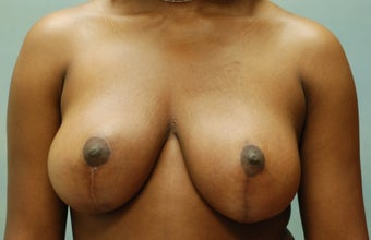 Breast Reduction after 221282