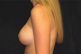 breast augmentation with lift after 630075