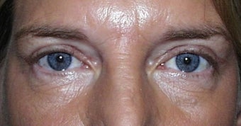 Upper Lid Blepharoplasty after 147715