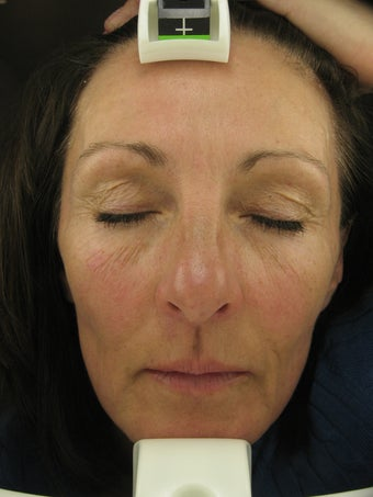 Fraxel re:pair CO2 laser resurfacing treatment before 43466