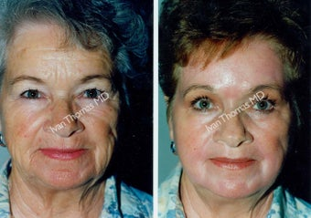 Non-Surgical Face Lift- Exoderm  before 242973
