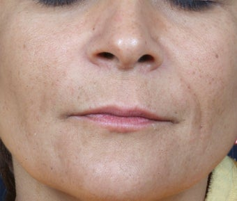 Radiesse treatment for nasolabial folds after 124912