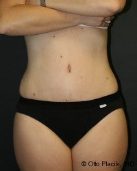 Abdominoplasty after 566579