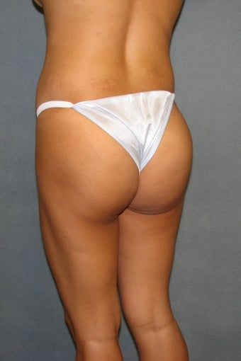 Buttock augmentation and liposculpture after 88874