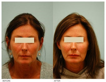 Injectable Fillers (Restylane/Perlane) before 136773