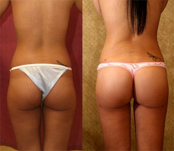buttock agumentation  brazilian buttock augmentation with fat grafting.