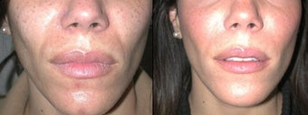 Juvederm to Laugh Lines before 6398