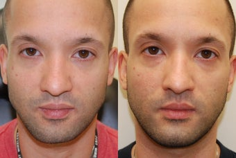 Correction of a crooked Chin Implant with Silikon-1000