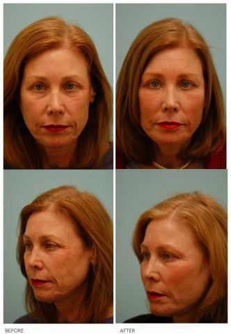 Fat Transfer/Fat Grafting/Facial Rejuvenation before 136366