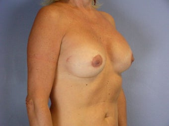 Circumareolar Breast Lift and Implants  after 307465