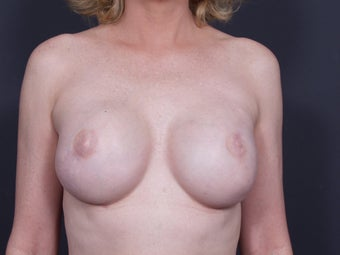 45 Year Old Female for Breast Reconstruction after 643215