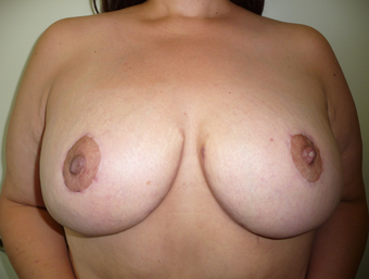 Breast reduction using the Ultimate Lift technique after 360387