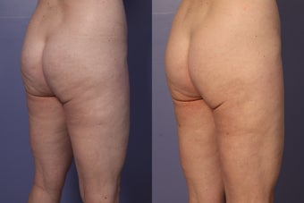 Cellulaze before 607913