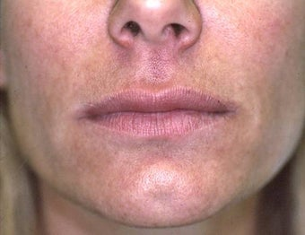 Lip Augmentation with Liquid Injectable Silicone after 157591