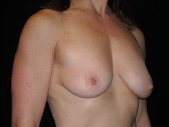 Augmentation mastopexy 516299