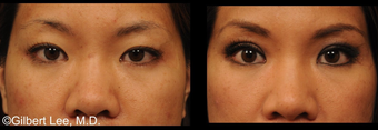 Asian Double Eyelid Surgery before 381166