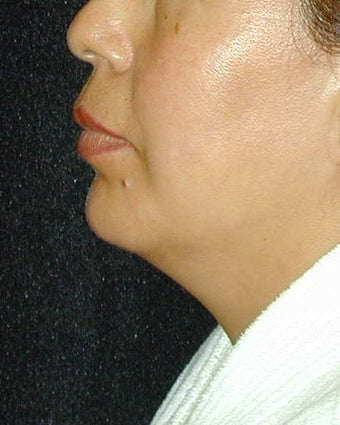 Chin Implant after 101324