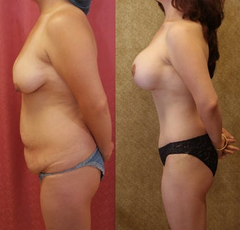 Mommy Makeover- tummy tuck and breast augmentation after 583644