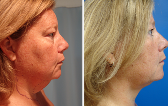 48 year old female who underwent liposuction of neck  before 625468