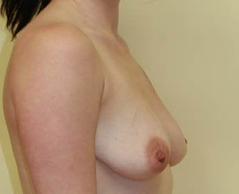 Breast Augmentation & Scarless Breast Lift before 226472