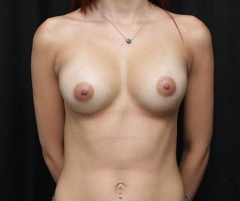 Subfascial Breast Augmentation after 399881