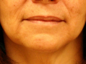 Treatment of marionette lines with a dermal filler after 377064
