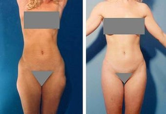 Liposuction before 636224
