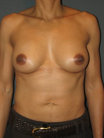 Bilateral Breast Augmentation with Silicone Gel Implants after 472900