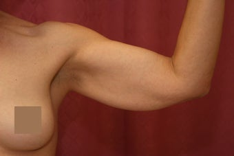 Brachioplasty or arm tuck in los angeles before 583673