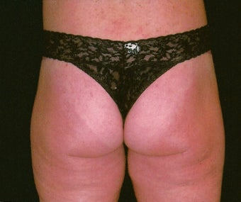 Buttock and flank lift for massive weight loss after 307428
