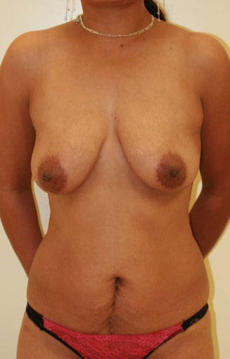 Abdominoplasty (Tummy Tuck) and breast lift