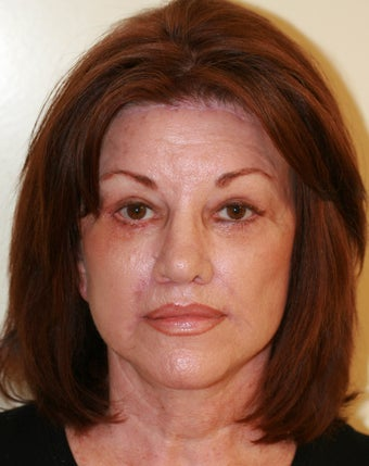 Facelift and Rhinoplasty after 216689
