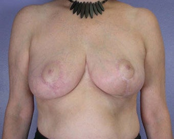 Breast Reduction after 285302