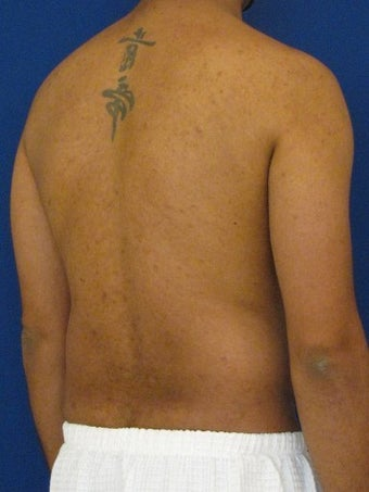 Vaser Hi Def Liposuction of the abdomen, chest, back, and flanks with fat injections to the pectoralis region 422700
