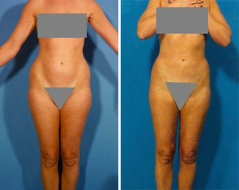 Liposuction before 636111