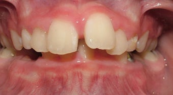 Teen Orthodontic Treatment (case #1JM) before 224715