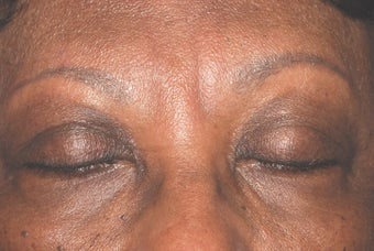 Botox for frown lines after 119388
