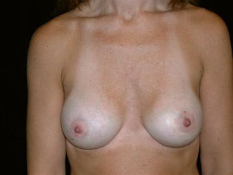 Breast augmentation after 293936